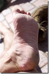PROSOK (left foot) @ 12 hrs