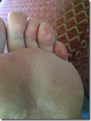 PROSOK w/ pinky toe blister after 26 hrs